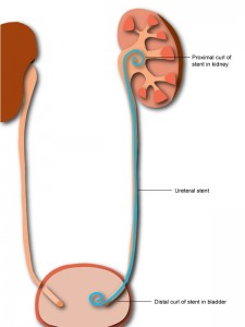 Diagram of a ureteral stent in position.