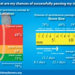 Infographic of chances of passing a kidney stone