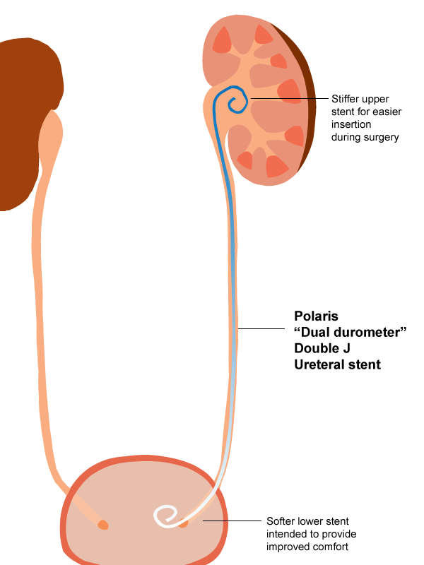 A Brief History Of Ureteral Stents