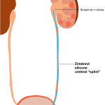 zimskind ureteral stent illustration